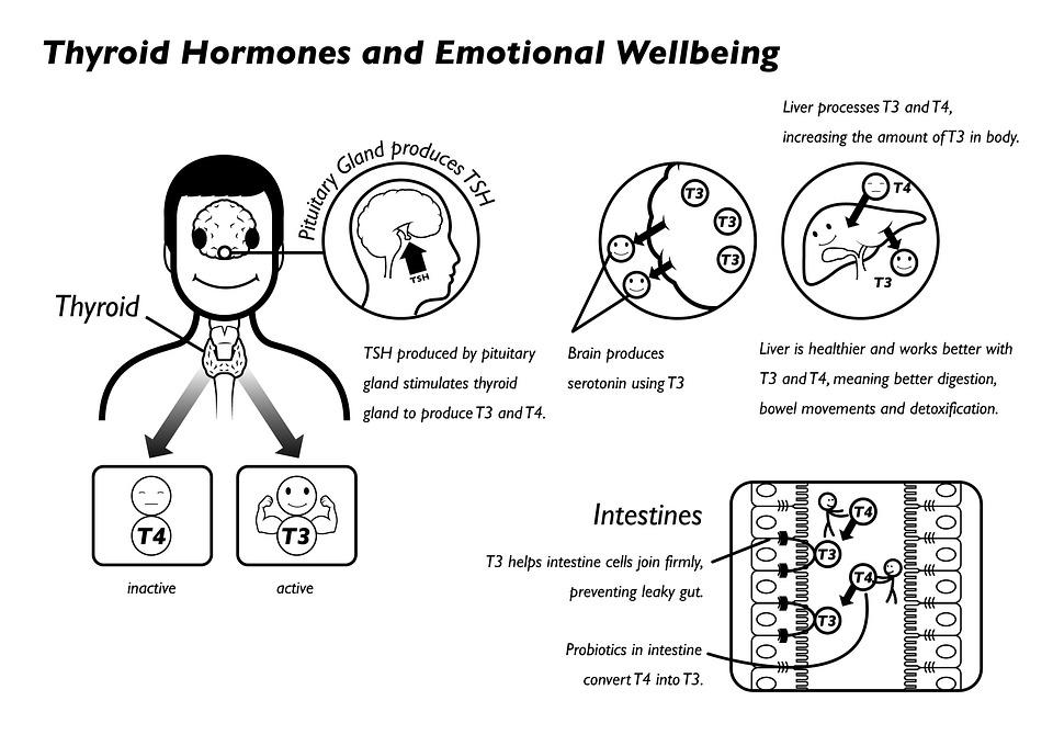 Choroba Hashimoto - objawy, diagnoza, leczenie